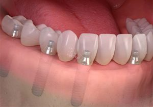 Full Implant